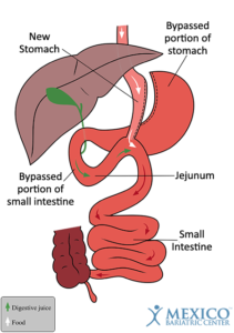 Mini Gastric Bypass Surgery Schematic - How it Works - Mini Bypass in Mexico